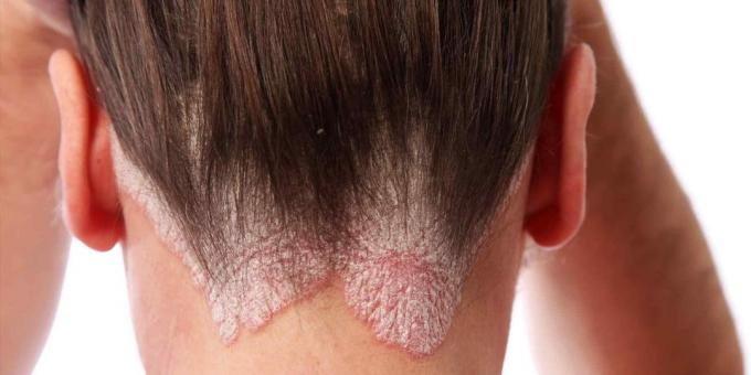 The head can be scratched due to psoriasis